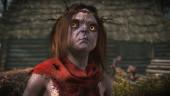 CD Projekt RED может выпустить обновление The Witcher 3 для PlayStation 4 Pro уже через несколько дней