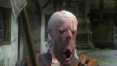 Последний патч ухудшает производительность консольной The Witcher 3: Wild Hunt
